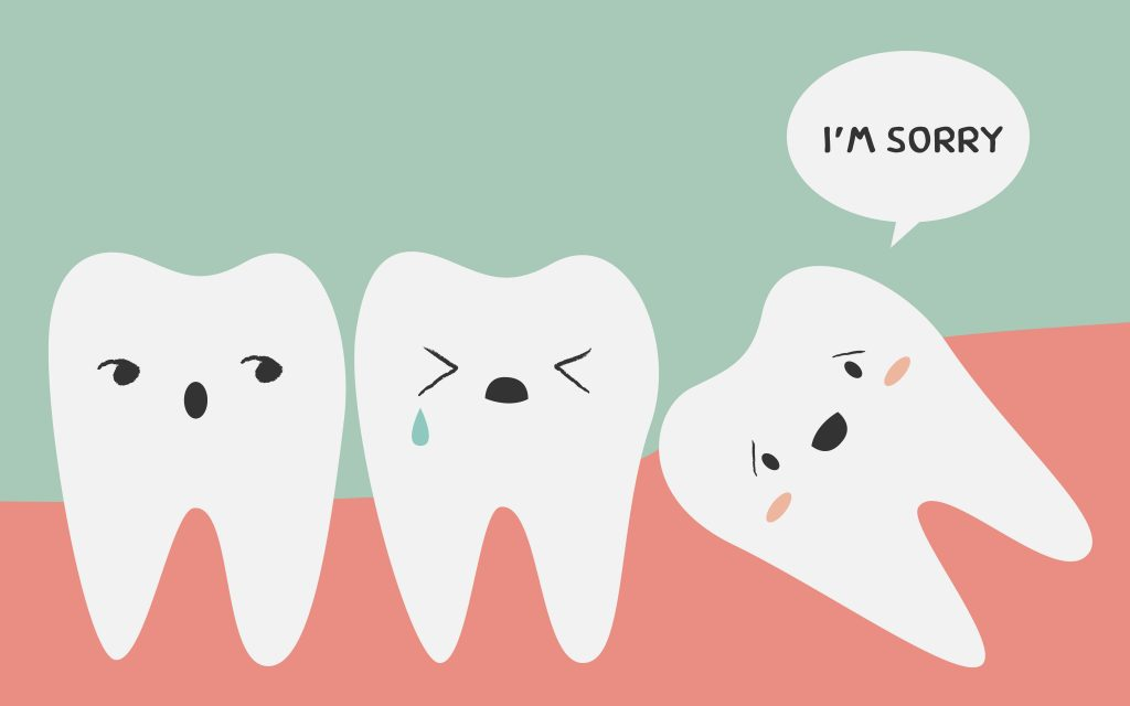 WIsdom-Tooth-extraction-surgery-singapore